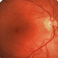Retinal scan image
